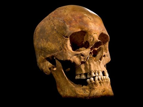 The skull of Richard III